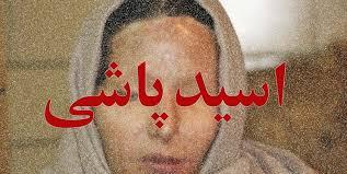 طرح تشدید مجازات اسیدپاشی اصلاح شد
